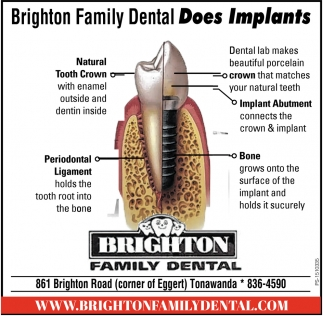 Brighton Family Dental Does Implants
